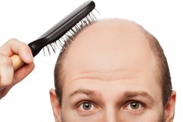 ハゲ頭の男性の画像