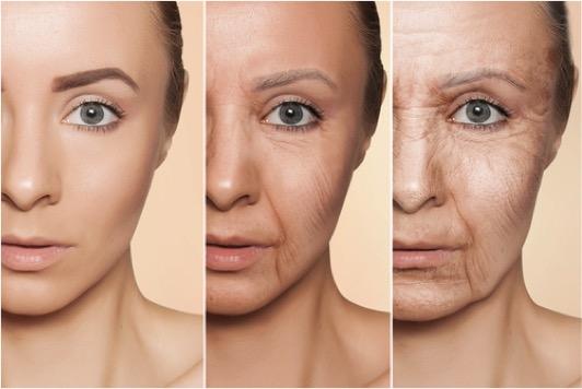 酸化 抗酸化 老化