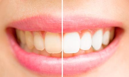 黄ばんだ歯と白い歯