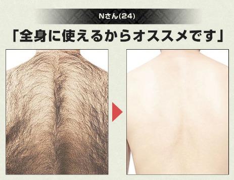 vidanの除毛クリームで除毛した人のビフォー・アフター画像